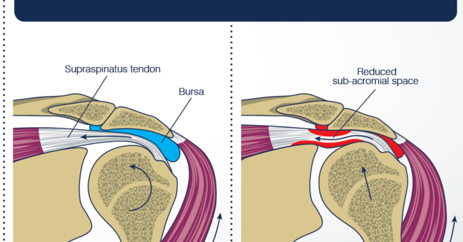 Shoulder Impingement image