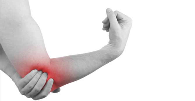 Tennis Elbow image
